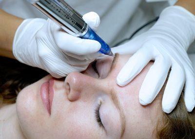 Permanent Make Up & Allergien