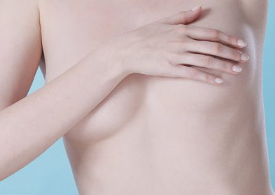 Areola and breast pigmentation