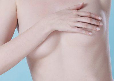Areola- und Brustpigmentierung